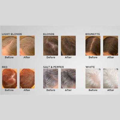 Thin Fine Hair - Visible Scalp