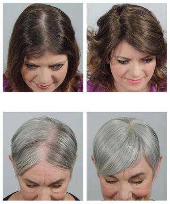 Snap in hair extensions for thinning hair and bold spots pmusecretfo Images